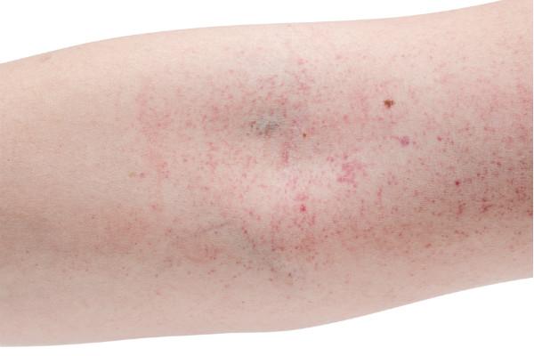 โรคไข้เลือดออก -เป็นผื่นแดงจุดเล็กๆ
