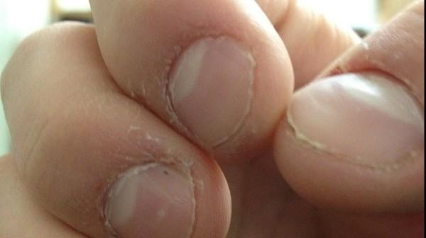 การตรวจสุขภาพของตัวเอง-เล็บหัวแม่มือมีสีขาวขึ้นมาครึ่งเล็บ