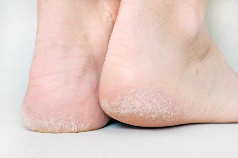 สาเหตุ ปัญหาส้นเท้าแตก