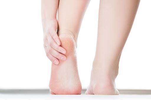 ปัญหาส้นเท้าแตก