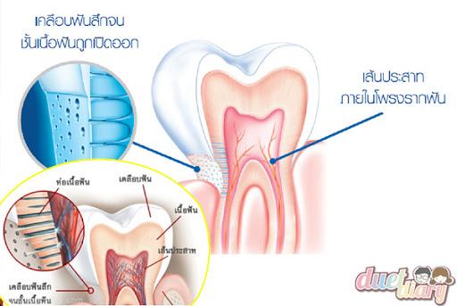 ปัญหาของอาการเสี่ยวฟัน-ฟันผุ