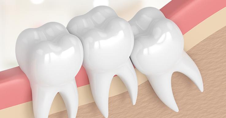 ผักผลไม้ที่ช่วยรักษาฟัน