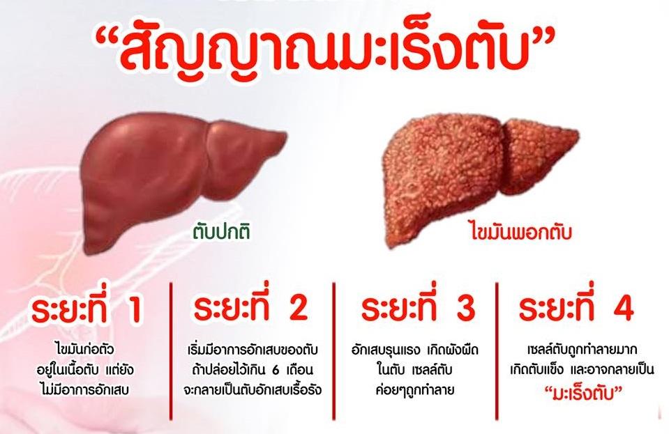 สังเกต อาการของโรคไวรัสตับอักเสบ